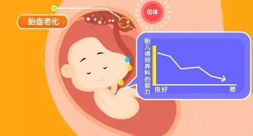 胎盘成熟度几级才能生?0级、1级、2级、3级是什么意思?